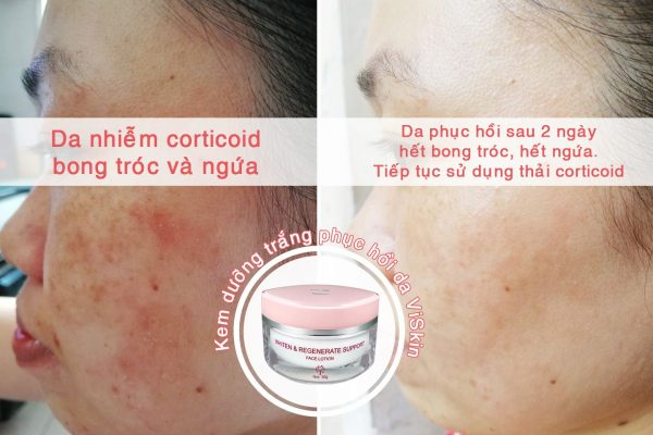 Face Lotion 2b